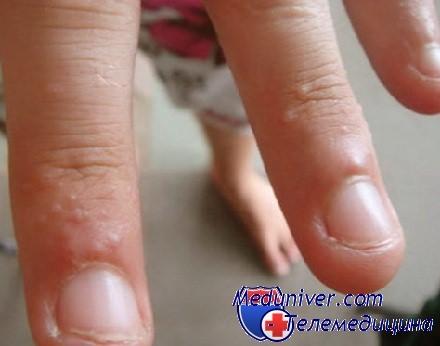 волдыри на руках аллергия
