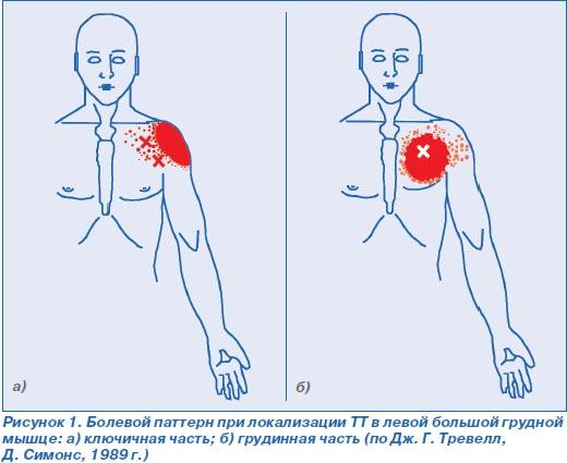 Что делать если левая грудная клетка больше правой