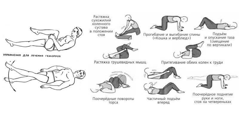 Упражнения для анального сфинктера
