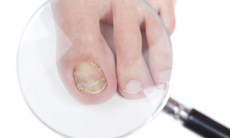 Раствор от вросшего ногтя