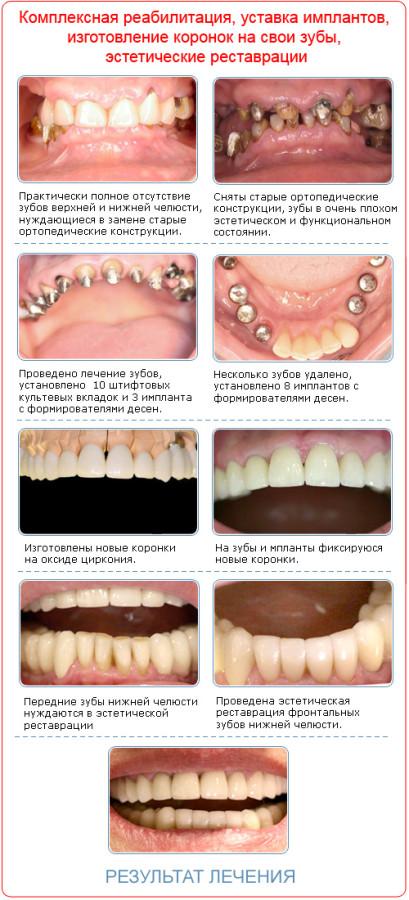 Когда лечить зубы в домашних условиях - Как правильно лечить зубную боль в домашних условиях, чем
