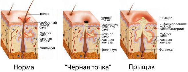 Сальная железа кожи лечение
