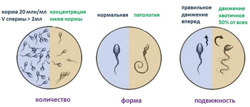 mozhno-li-uvelichit-protsent-nepodvizhnih-spermatozoidov