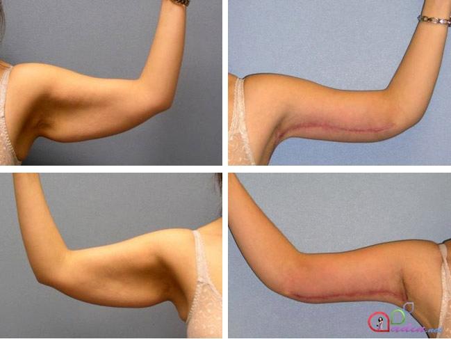 Как подтянуть кожу после похудения или родов на