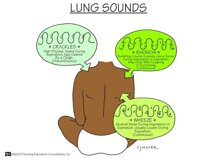 Best 25+ Lung sounds ideas on Pinterest Auscultating lung sounds - assessment