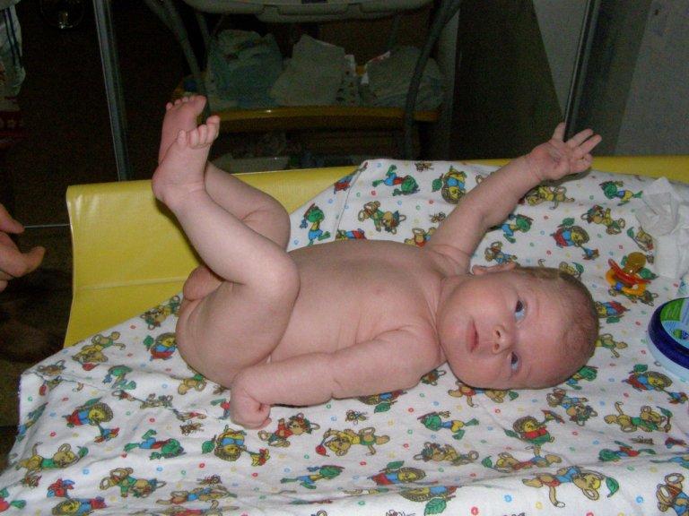 У ребенка болит вокруг пупка по утрам
