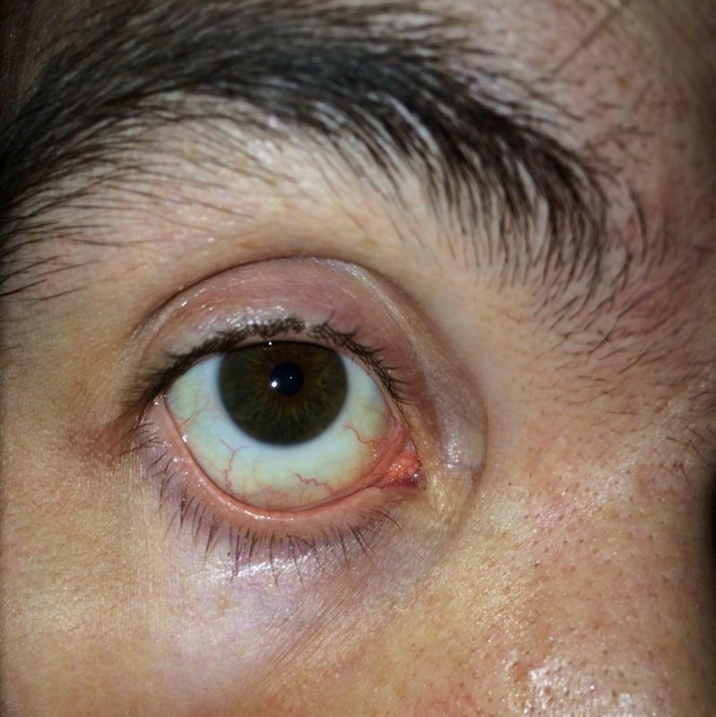 Как избавиться от красных глаз после запоя