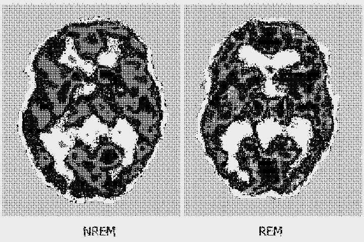 Активность мозга при медленной (слева) и быстрой (справа) стадиях сна — как видно, при каждой фазе задействованы разные участки