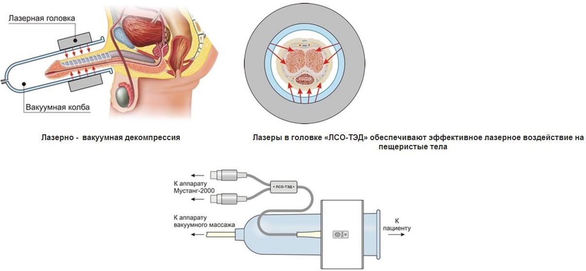 Современные методы лечения эректильной дисфункции